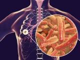 Prevención y detección oportuna de tuberculosis:IMSS